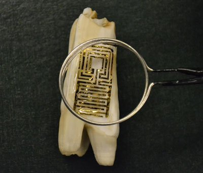 Optical image of the graphene wireless sensor biotransferred onto the surface of a tooth.